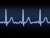 17664-srdce-rytmus-ekg-arytmia-echo-krivka-kardio-infarkt-clanok